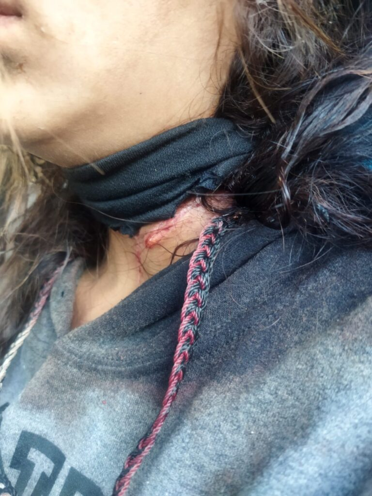 Adolescente-rescatada-por-policias-en-juarez